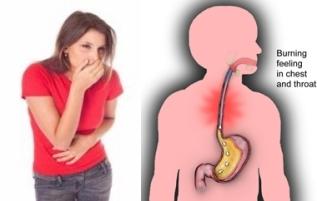 Cara Mengatasi Penyakit GERD